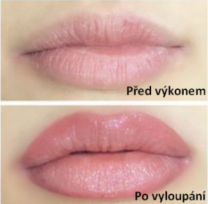Permanentní make-up rtů - kontura s výplní